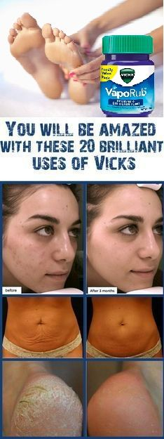 9 Surprising Uses for Vicks VapoRub  !!!