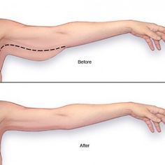 Ways You Can Reduce Arm Fat