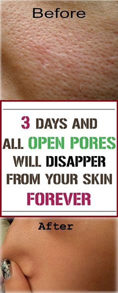 3 Days and All Open Pores Will Disappear From Your Skin Forever By Using These Homemade Solutions - NZ Holistic Health Home Beauty Tips, Beauty Hacks, Diy Beauty, Healthy Tips, How To Stay Healthy, Healthy Recipes, Healthy Food, Healthy Detox, Simple Recipes