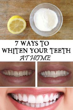7 Ways To Whiten Your Teeth At Home