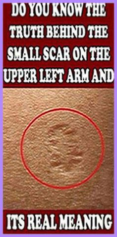 Have you ever wondered what that small scar on the upper left arm is? Well, it is from being vaccinated from small pox. The vaccine wa Holistic Remedies, Holistic Healing, Natural Healing, Health Remedies, Natural Remedies, Health Guru, Health And Wellbeing, Health And Nutrition, Gut Health