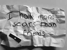 I have more scars than friends. ok let's face it...it would be hard not to at this point.