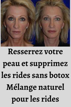 Ayurveda, Goji, Wealth, Women, Rose Water, Face Care, Natural Treatments, Under Eye Wrinkles, Wrinkle Remover