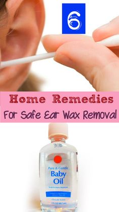 6 Home Remedies for Safe Earwax Removal - makes me think of my mom! If only she had a Pinterest account. It's ok though I sent her the link! Lol