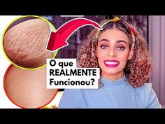 Tips Belleza, Abs, Skin Care, Fitness, Makeup, How To Make, Diana, Youtube, Stretch Mark Removal