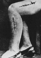 Ravensbrueck, Polish political prisoner Helena Hegier (Rafalska), who was subjected to medical experiments in 1942. This photograph was entered as evidence for the prosecution at the Medical Trial in Nuremberg. The disfiguring scars resulted from incisions made by medical personnel that were purposely infected with bacteria, dirt, and slivers of glass.