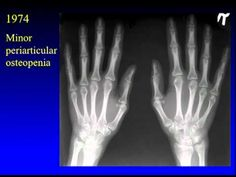 Arthritis: Spotlight on Stem Cell Research - Mark Genovese Medical Technology, Science And Technology, Stem Cell Research, Stem Cells, Arthritis, Spotlight, Future, Awesome, Health