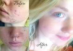 Tracy describes her blog about curing acne naturally and how she treated her own severe acne without drugs