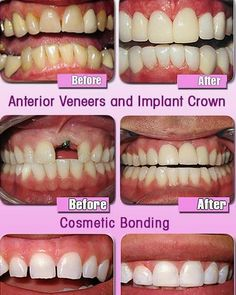 Dental Treatment Before and After Click the link for our Dentist Consultation: http://www.arbourdental.co.uk/