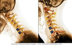 Artificial Disc Replacement of the Neck (Cervical Spine) shown on a Color X-Ray. This Image shows how the Artificial Disc Replacement can move when bending the Neck forward (flexion). Created by Medical Media Images. A novel, advanced visual tool to see and understand Anatomy, Disease, and Surgery created by Medical Media Images. Ideal for Websites and Publications. http://www.medicalmediaimages.com/cervical-spine-anatomy-x-ray-images-artificial-disc-replacements/309