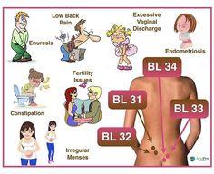 Reflexology Massage, Sciatica Pain, Acupressure Points, Qigong, Endometriosis, Health Matters, Massage Therapy, Alternative Medicine, Traditional Chinese Medicine
