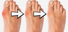 What Are Bunions? How Are They Caused And What Are The Natural Ways To Remove Them?