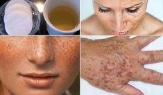 Domowa mieszanka na przebarwienia skóry i piegi