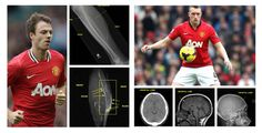 Manchester United's Phil Jones and Jonny Evans both left the game against Stoke due to injury. Phil Jones suffered a concussion on the field and Jonny Evans left with a calf injury.