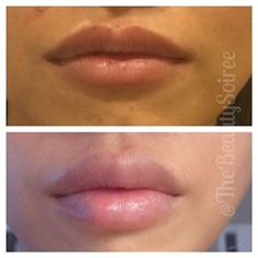 lip injections after two syringes - Google Search