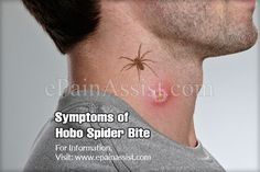 Symptoms of Hobo Spider Bite & It's Treatment, Prognosis, Prevention Bushcraft Camping, Camping Survival, Survival Tips, Survival Skills, Hobo Spider Bite, Treating Spider Bites, Spider Bite Symptoms, Insect Bite Swelling, Brown Recluse Spider