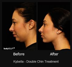 Kybella is an FDA approved and safe non-surgical double chin treatment . See the before and after photo of a patient who has benefited from Kybella treatment.