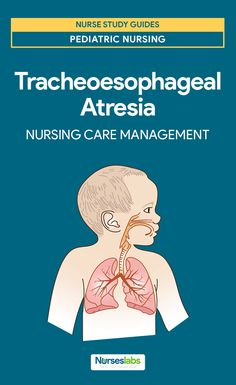 Tracheoesophageal Atresia Nursing Care Management and Study Guide Nursing Schools Near Me, Online Nursing Schools, Nursing School Tips, Nursing Career, Nursing Students, Lpn Schools, Online Nursing Programs, Accelerated Nursing Programs, Rn Programs