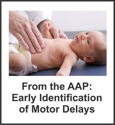 Your Therapy Source: Early Identification of Motor Delays. Pinned by SOS Inc. Resources. Follow all our boards at pinterest.com/sostherapy for therapy resources.