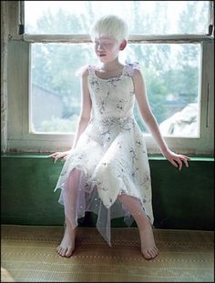 An orphan in China with albinism. Probably one of the most beautiful children I have ever seen.