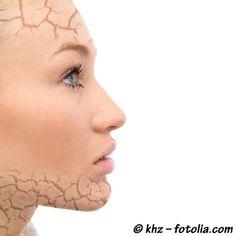 Plantes et santé - Magazine de la phytothérapie - Psoriasis : faites peau nette