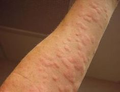 Chronic urticaria treatment for allergy rashes, hives, weals ...