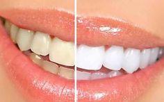Hai i denti gialli? Ecco come risolvere il problema