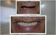 Smilekraft Dentistry provides orthodontic care services like, invisible braces, lingual braces, fixed ceramic braces at Vishal Nagar, Pimple Nilakh, Aundh, Baner, Hinjewadi, Wakad, Sangavi Pune. For More Details Visit : http://www.smilekraftdentistry.com/our-forte/cosmetic-dentistry-pune/orthodontics-pune.html
