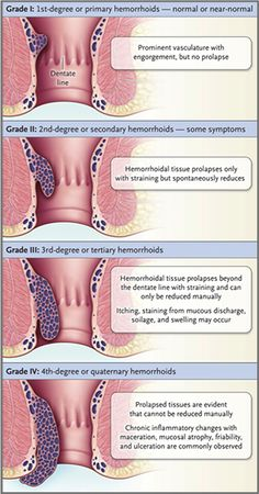 12 Best Hemorrhoid Grades images | Hemorrhoids treatment ...