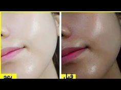 كريم مذهل يخلصك من الهالات السوداء و البقع الداكنة و آثار الحبوب نهائيا سيجعل وجهك ابيض كالحليب Youtube Beauty Secrets Beauty Marketing