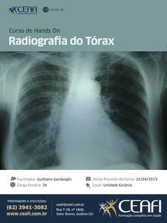 """Arte """"Radiografia do Tórax"""" para o CEAFI. #course #health #handson #design"""