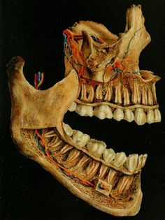 The nerves [yellow] and blood vessels [blue and red] within the spongy bone of the jaw.  The buccal plates are partially removed to show the path of the vessels and nerves into the teeth.    Atlas and Text-Book of Dentistry. Gustav Preiswerk, 1906.