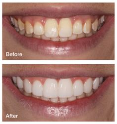 """""""My mom had her teeth done and the doctor ground down her teeth to little nubs before he put the veneers on. She was in a lot of pain. I was afraid to go to the dentist after that until I heard about SmileSimplicity. I got the smile of my dreams without any shots, any pain, or any of my natural tooth structure being permanently destroyed all with SmileSimplicity. IU would recommend this to anyone who wants a dazzling, new smile without the fear of the dentist."""""""