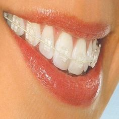 Benefits Of Clear Braces