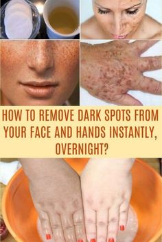 Natural Remedies To Remove Warts, Dark Spots, Blackheads And Skin Tags Quickly is part of Dark spot remover for face - Sun Spots On Skin, Black Spots On Face, Brown Spots On Skin, Brown Skin, Dark Spots, Dark Skin, Dark Brown, Facial Brown Spots, Essential Oils
