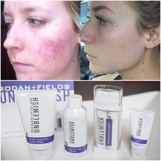 Don't let acne destroy your self confidence! Unblemish tackles all stages of the acne cycle to make your skin smooth and glowing with confidence!