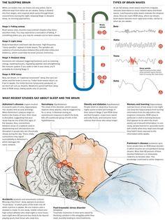 the sleeping brain