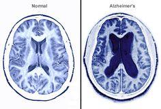 Alzheimer's Disease - Detailed Info ~ Nature Cure & Awareness