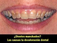 ¿Dientes manchados? Las causas de la decoloración dental | Directorio Odontológico