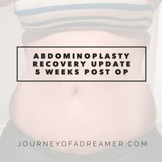 Abdominoplasty Recovery: Q and A (5 Weeks Post Op)