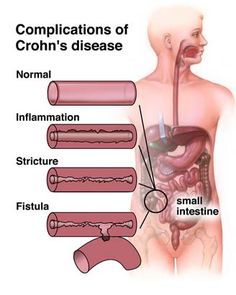 Initial Surgery for Crohns Disease in Japan