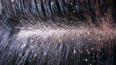 The Most Effective Hair Mask For Dandruff For Getting A Lasting Solution To The Problem Hair Growth Tips, Hair Care Tips, What Causes Dandruff, Itchy Flaky Scalp, Dry Scalp Remedy, Dandruff Solutions, Hair Mask For Dandruff, Ayurvedic Herbs, Ayurvedic Remedies