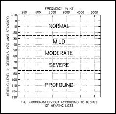 Audiogram Repinned by SOS Inc. Resources @SOS Inc. Resources. I will go from a profound hearing loss to a mild hearing loss with my implants across all tones! Yes!