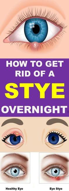 How To Get Rid Of A Stye Overnight - Kok Vannak