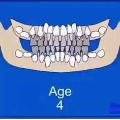 Teeth eruption dates. Tooth eruption explained with visuals. Learn when your deciduous (baby or milk Dental Assistant Study, Dental Hygiene School, Dental Life, Dental Art, Dental Procedures, Dental Surgery, Dental Implants, Teeth Surgery, Dental Videos