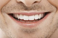 Pearly white teeth and decent breath does not always guarantee a perfect oral health. Of course, a healthy oral hygiene is necessary but certain symptoms beyond Oral Health, Dental Health, Dental Care, Health Care, Effects Of Drug Abuse, Kissing Facts, Stars D'hollywood, Smile Teeth, Braces Smile