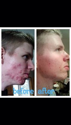 Before and after picture! Customer using Nerium - contact me for details linds858@gmail.com or visit dimon.nerium.com