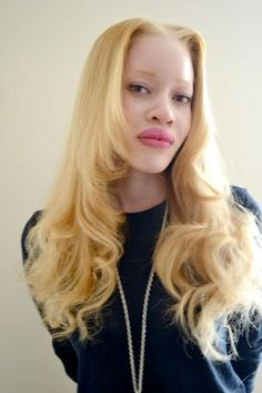 Supermodel with albinism, Diandra Forrest. She is signed to Elite, one of the most renowned modelling agencies.