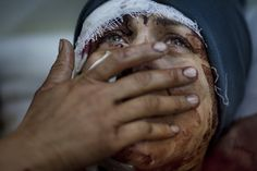 A woman named Aida cries as she recovers from severe injuries after the Syrian Army shelled her house in Idlib, March 10, 2012. Aida's husband and two children were killed after their home was shelled.