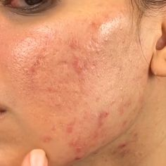 By Emerald Beauty skin face skin no makeup skin requires commitment skin secrets skin tips Combination Skin Care Routine, Natural Acne Treatment, Black Skin Care, Acne Scar Removal, Acne Skin, Acne Blemishes, Acne Face, Tips Belleza, Homemade Beauty Products